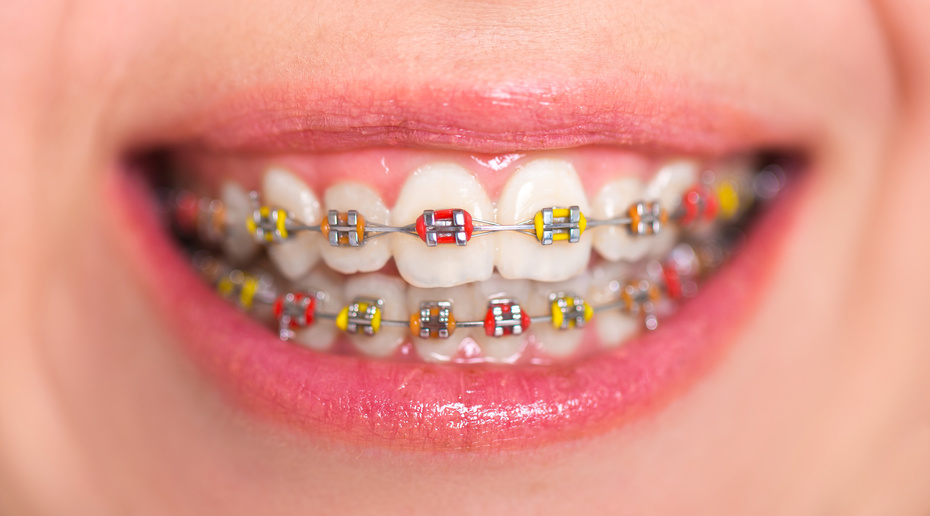Image result for Best Orthodontist Los Angeles