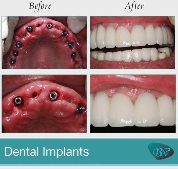 Before And After Dental Photo Gallery Los Angeles Best