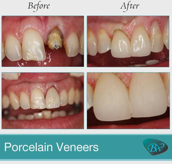 dental porcelain veneers before and after
