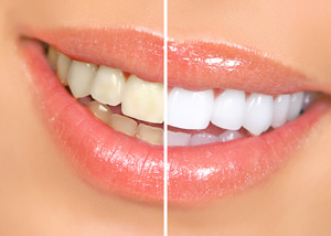 Teeth whitening beverly hills ca