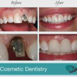 Cosmetic Dentistry Beverly Hills, CA