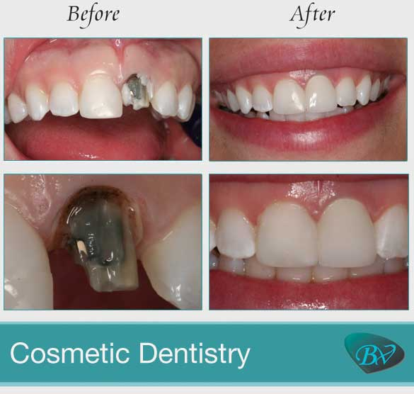 bevely hills cosmetic dentistry