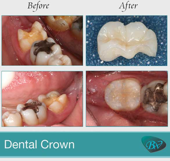 porcelain dental drown