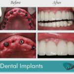 Replace Missing Teeth with Dental Implants Los Angeles, CA