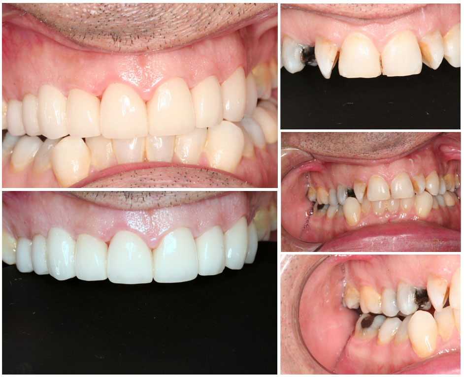 Full mouth reconstruction Los Angeles