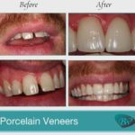 Porcelain Dental Veneers Beverly Hills, CA