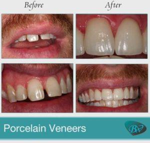 porcelain veneers dentist in beverly hills
