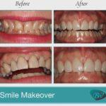 Smile Makeover by Los Angeles Dentist, Bruce Vafa DDS.