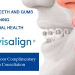 Invisalign and Braces: A Side-by-Side Comparison