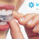 Planning to Improve Your Dental Health? What You Need to Know About Invisalign