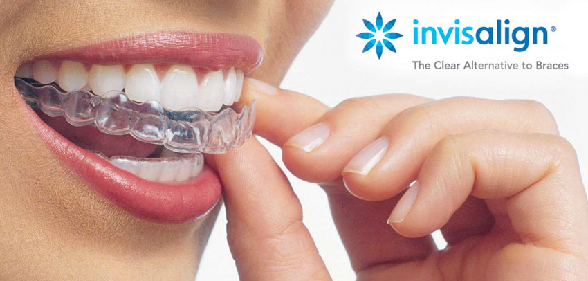 beverly hills best invisalign dentist