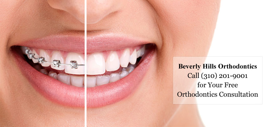 Do You Have Misaligned Teeth? Top 3 Benefits of Orthodontics