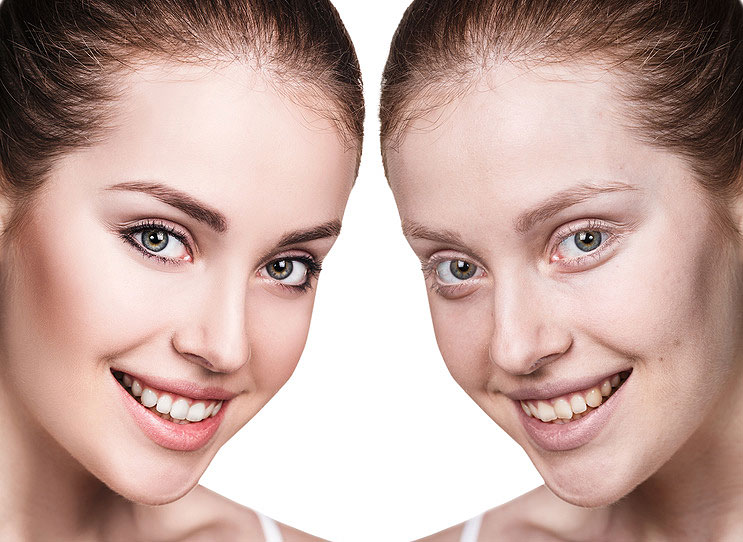 A Complete Guide to Anti-Aging Dentistry in Beverly Hills, CA
