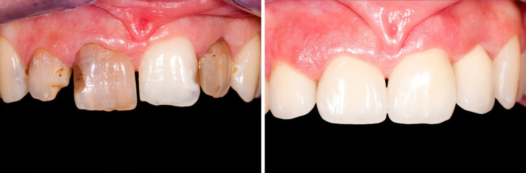 Cost of Porcelain Veneers in Beverly Hills