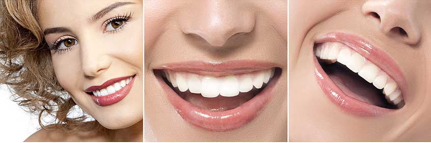 Make Your Christmas Wish Come True With Zoom Teeth Whitening in Los Angeles