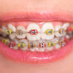 Complete Guide to Color Braces in Los Angeles, CA