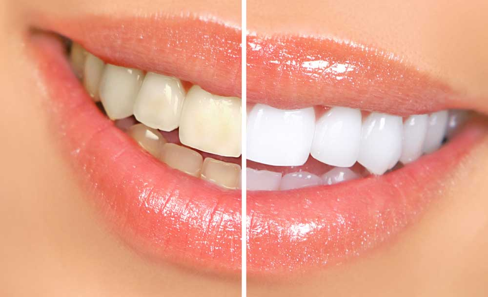 Best Places for Teeth Whitening in Los Angeles