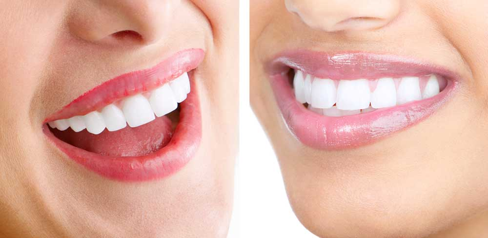 Pros and Cons of Porcelain Veneers