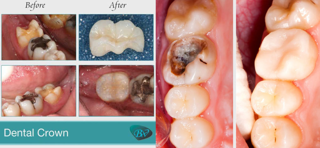 A Step-by-Step Guide to Dental Crown Procedures