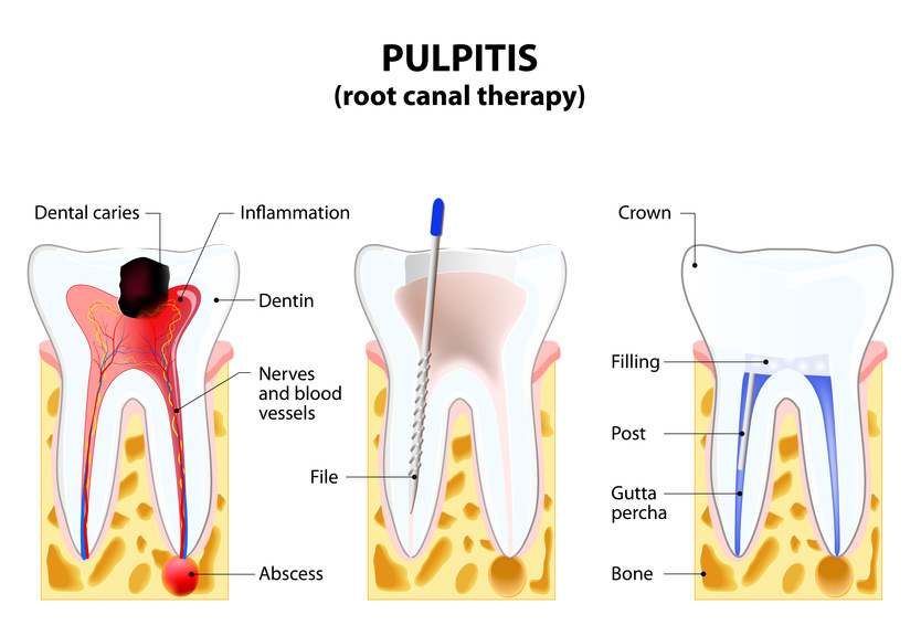 root canal therapy Beverly Hills