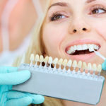 What You Need To Know About Getting A Front Tooth Crown in Los Angeles