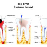 When a Cavity Needs a Root Canal