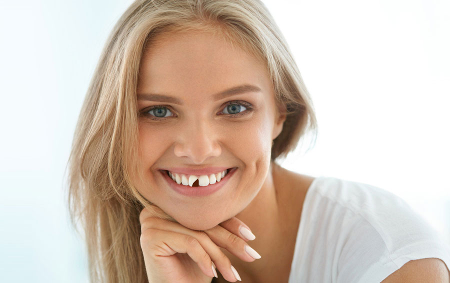 4 Ways to fix a Chipped Tooth and the Best Option for You