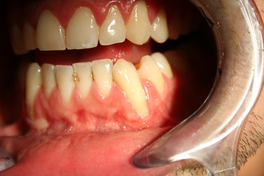 Best Ways to Treat Gum Recession