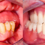 Same Day Tooth Replacement (All-on-4) Vs. Traditional Dental Implants