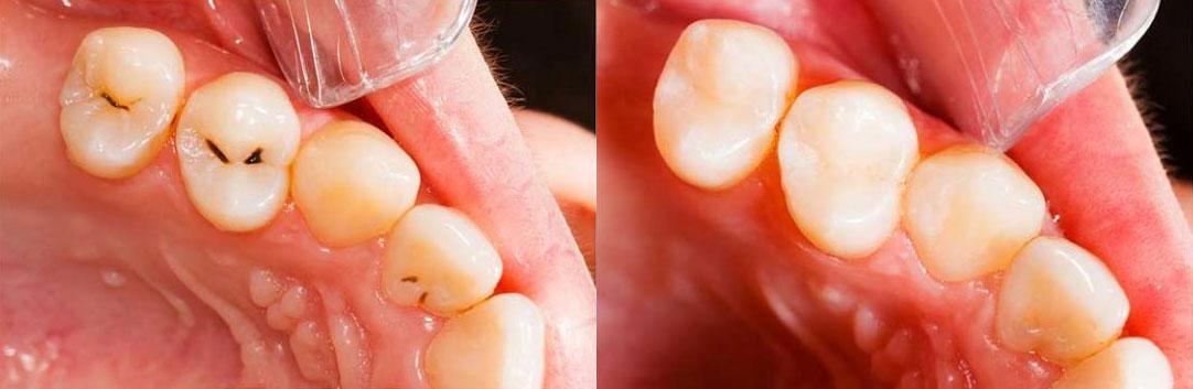non toxic dental fillings