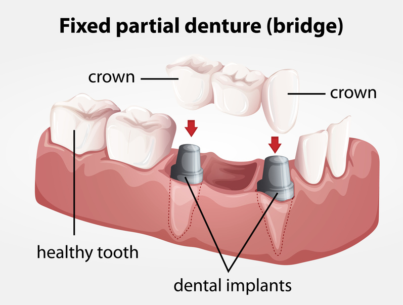 dental bridges Beverly Hills, ca