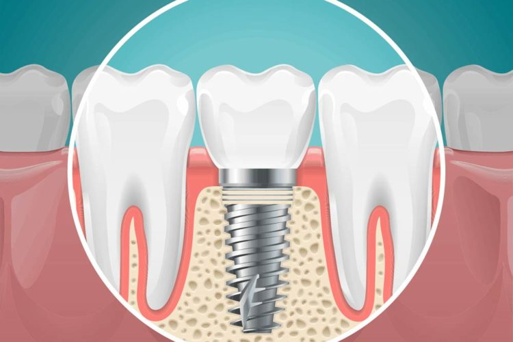 bone graft for dental implants los angeles