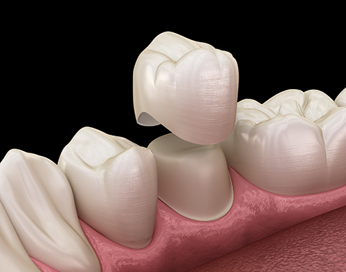 Root Canal and Crown Cost Los Angeles