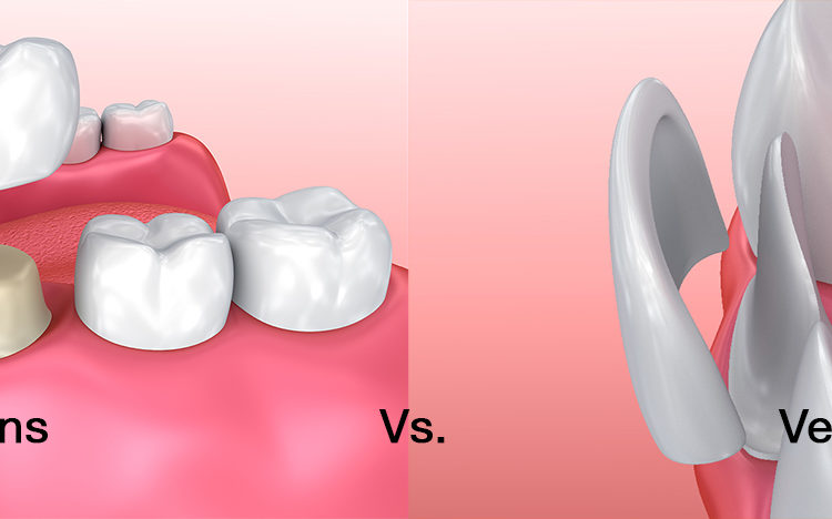 Veneers vs. Crowns