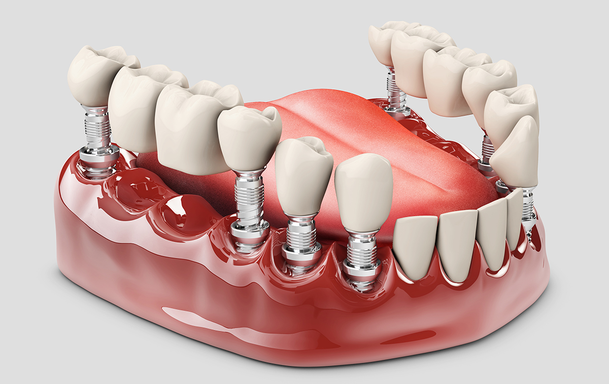 Fixed Partial Dentures Los Angeles