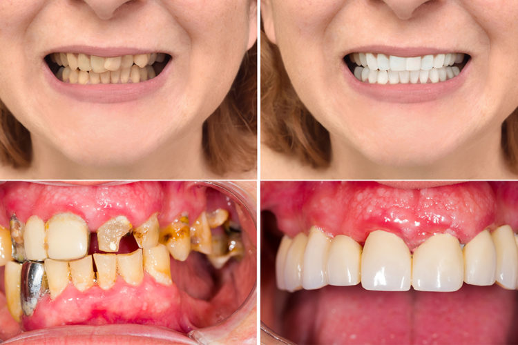 before after beautiful smile