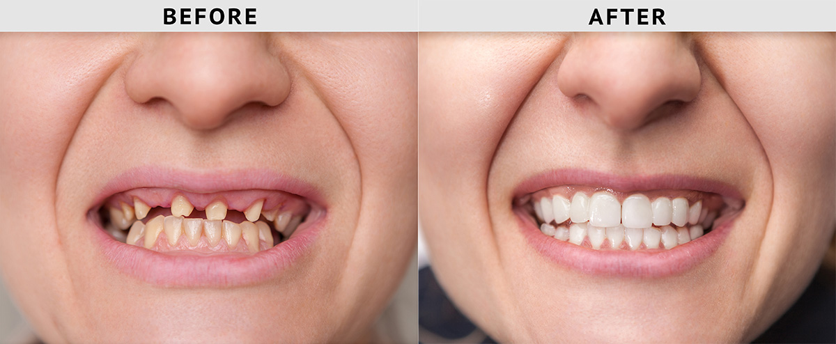 missing teeth before after treatment