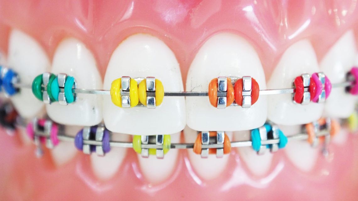 Braces Colors for 2020 - Smile Angels of Beverly Hills