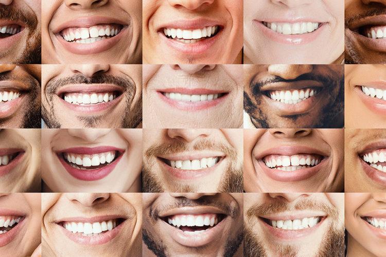 teeth whitening candidates