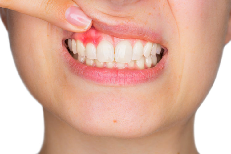 Understanding Gingivitis Treatment
