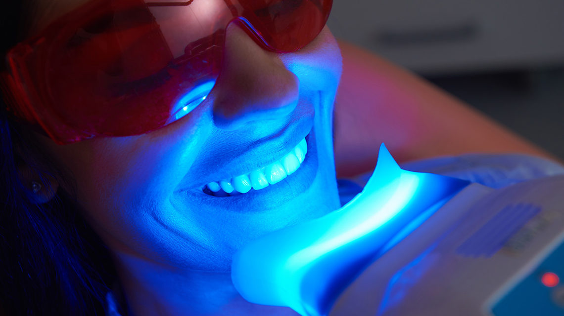 teeth whitening procedure
