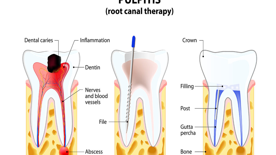 root canal therapy steps