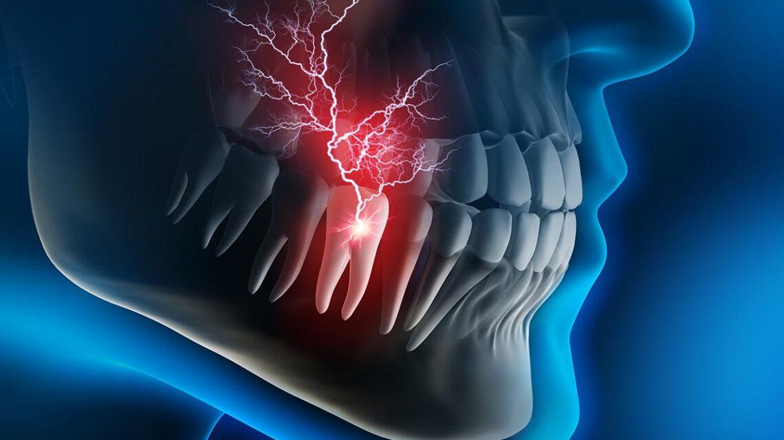 dental emergency beverly hiills