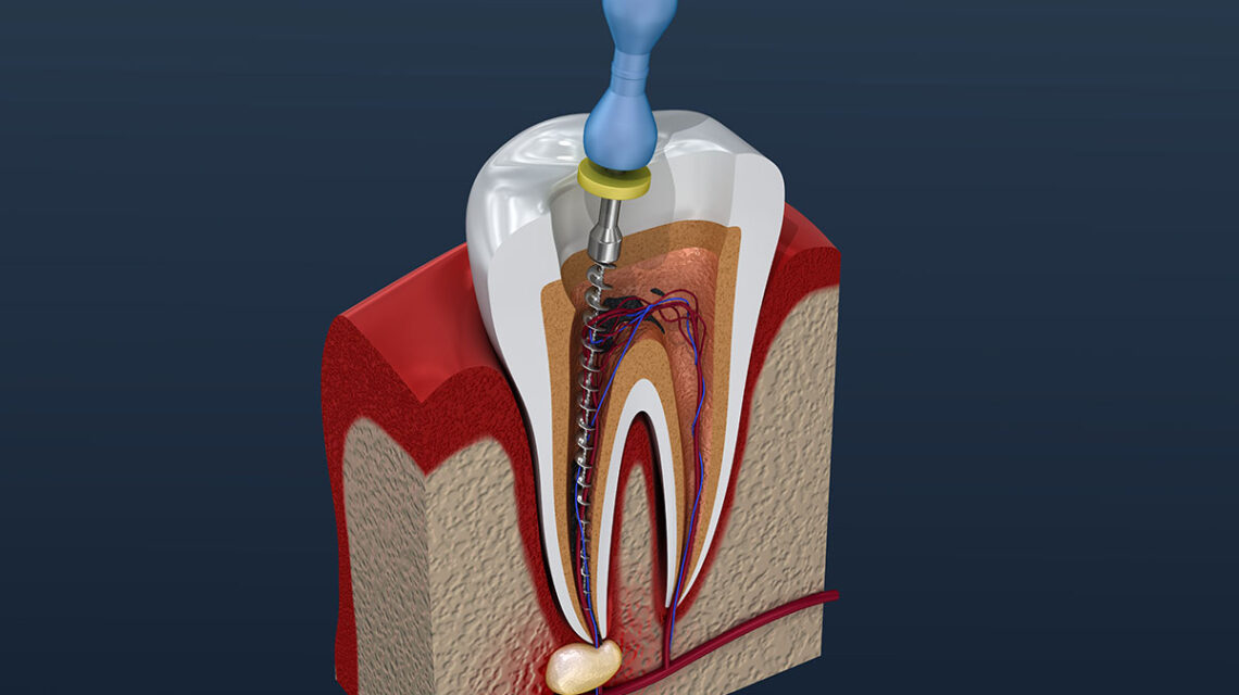root canal treatment and crown