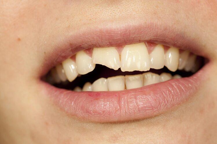 Broken Tooth treatment Los Angeles