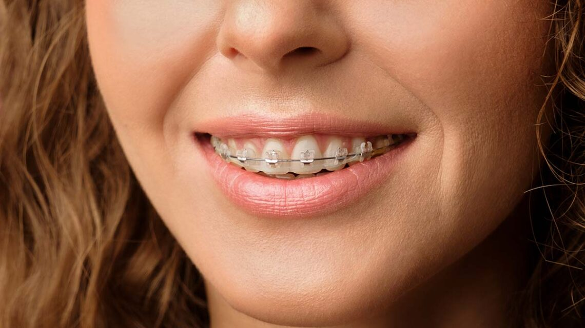 dental braces cost with insurance