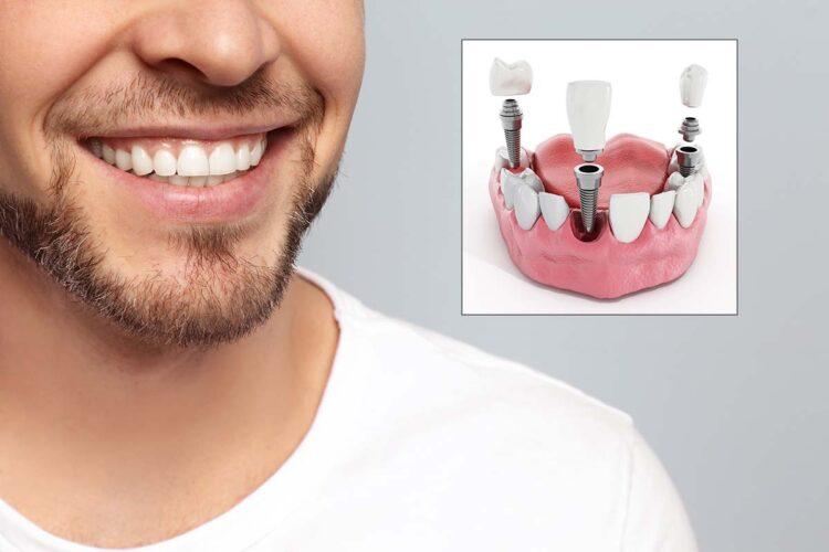 dental implants safe